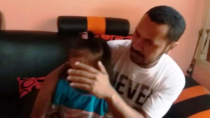 Anak Korban Gigitan Sang Kakak